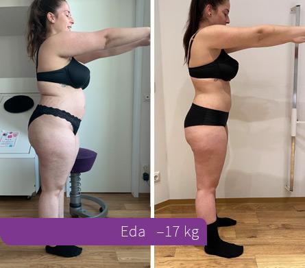 Haut 30 kg abgenommen 30 kg